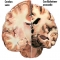 Grupo de Enfermedades Neurodegenerativas